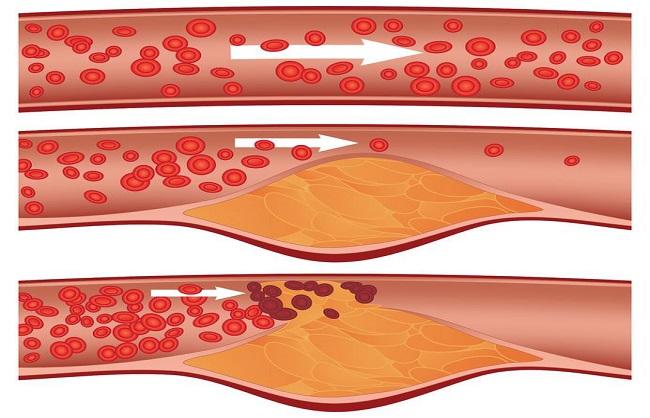 स्वास्थय : दिल के लिए खतरे की घंटी है एथेरोस्क्लेरोसिस, मर्ज को न करें नजरअंदाज