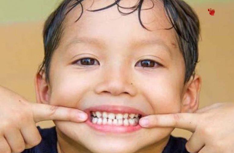 स्वास्थय : बचपन से ही रखें दांतों का ख्याल