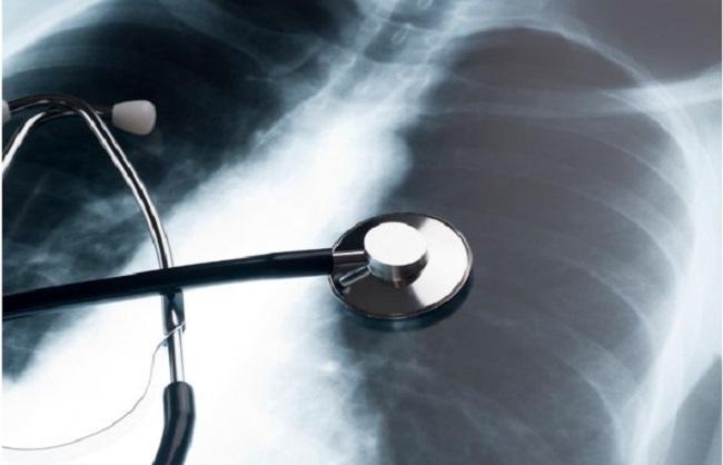स्वास्थय :अब सिर्फ छाती के एक्स-रे से हो सकेगी कोविड मरीजों की पहचान