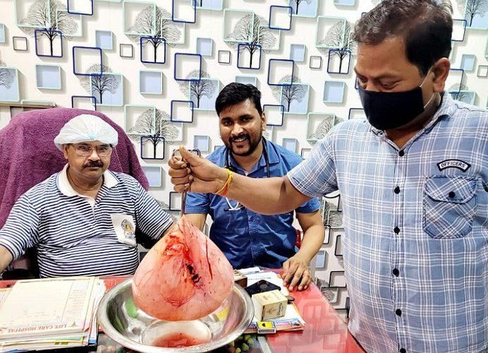 Balrampur News: आपरेशन कर पेट से निकाला गया 10 किलो का ट्यूमर